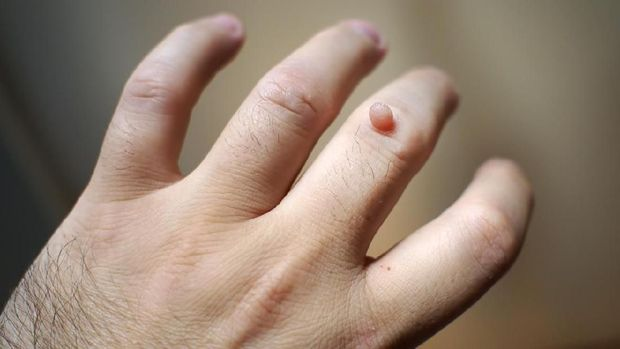 Wart on the hand fingers.  open hand.
