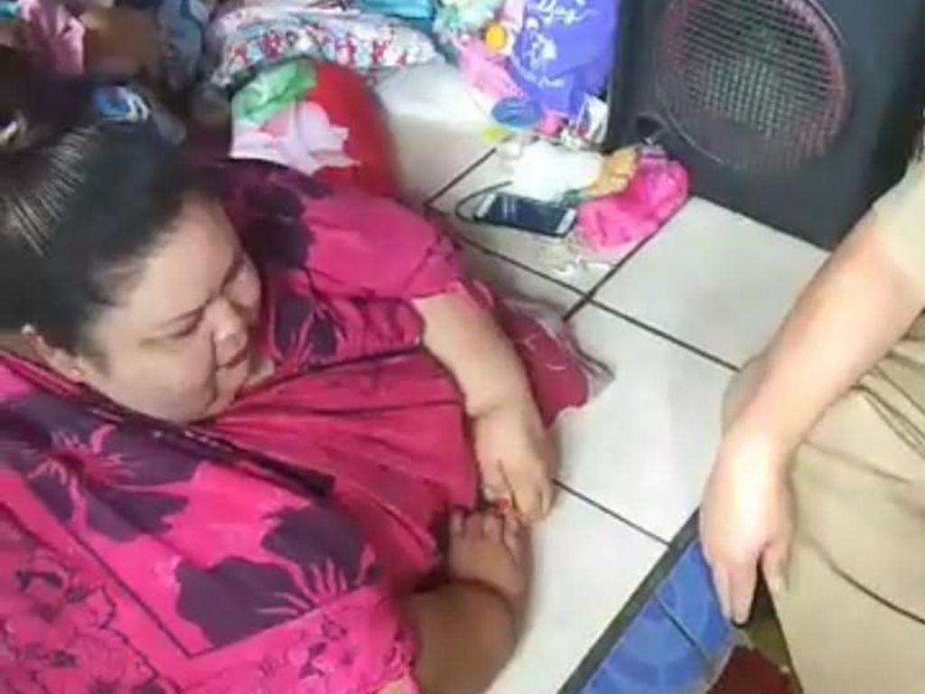 Obesitas di Atas 150 Kg Tak Cukup Cuma Diet, Disarankan Operasi Lambung