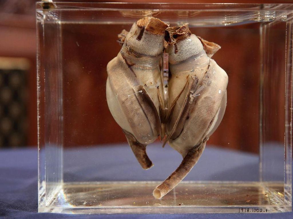 Potret Jantung Buatan Pertama yang Kini Berusia 50 Tahun