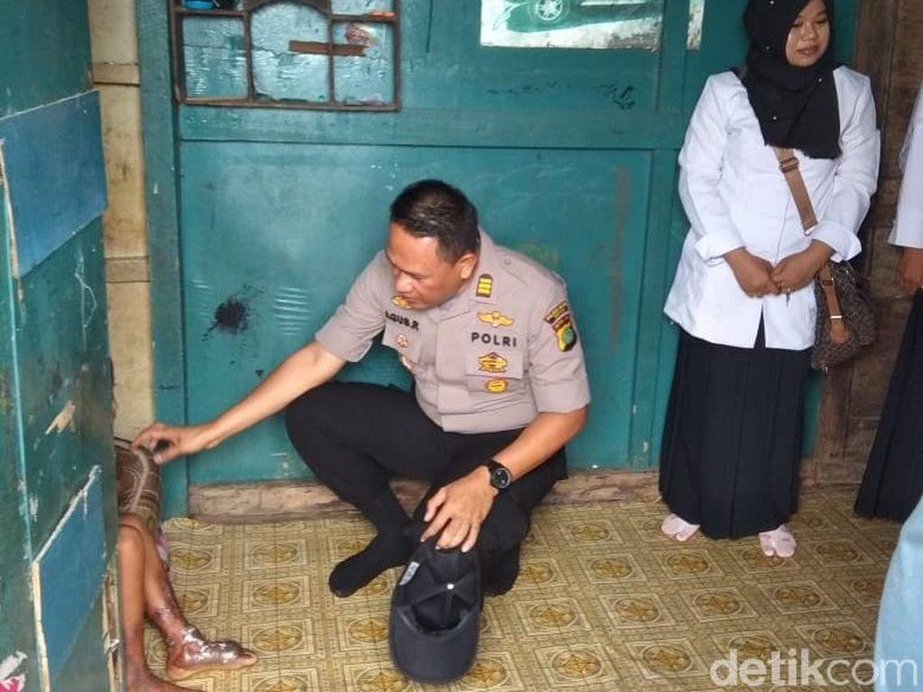 Polisi Selidiki Pembuang Limbah di TKP Kaki Bocah Melepuh di Bekasi