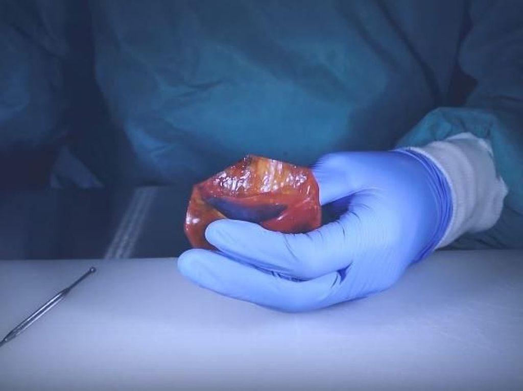 Keren! Dokter Ini Lakukan Operasi Bedah Beragam Jenis Buah