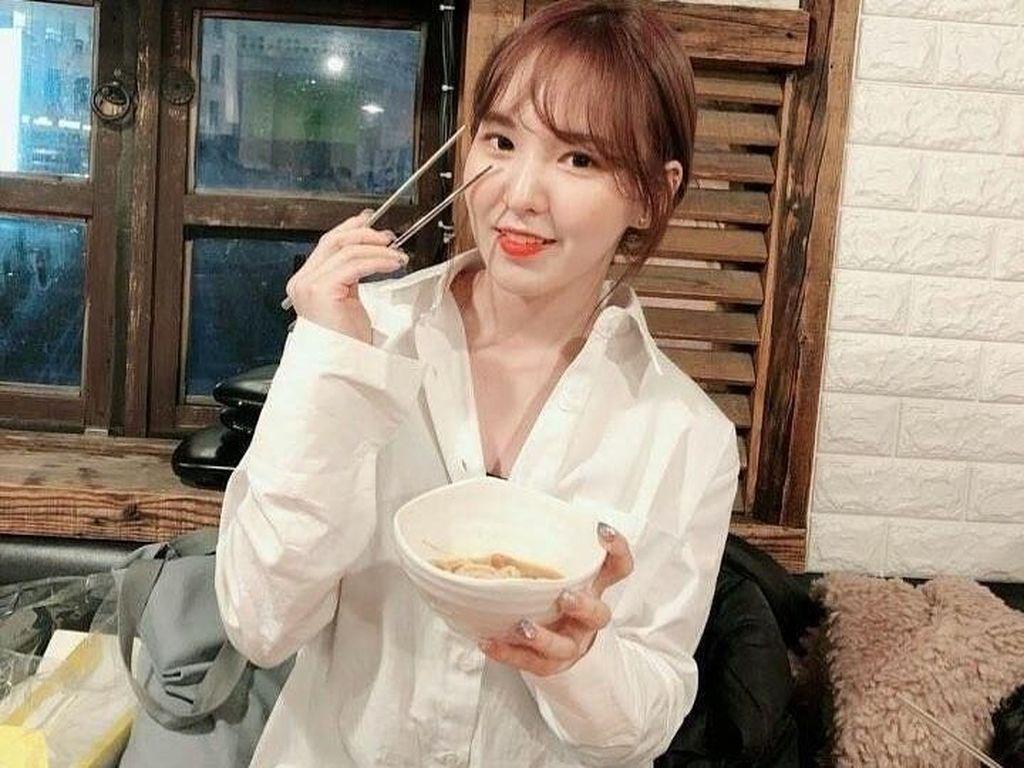 Wendy Red Velvet Jatuh dan Patah Tulang, Berapa Lama Penyembuhannya?