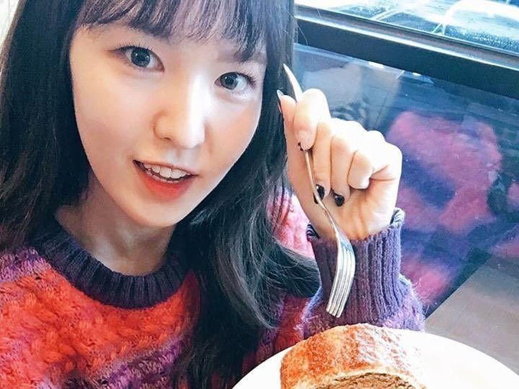Wendy Red Velvet Patah Tulang, Ini Hal yang Dapat Menghambat Penyembuhan