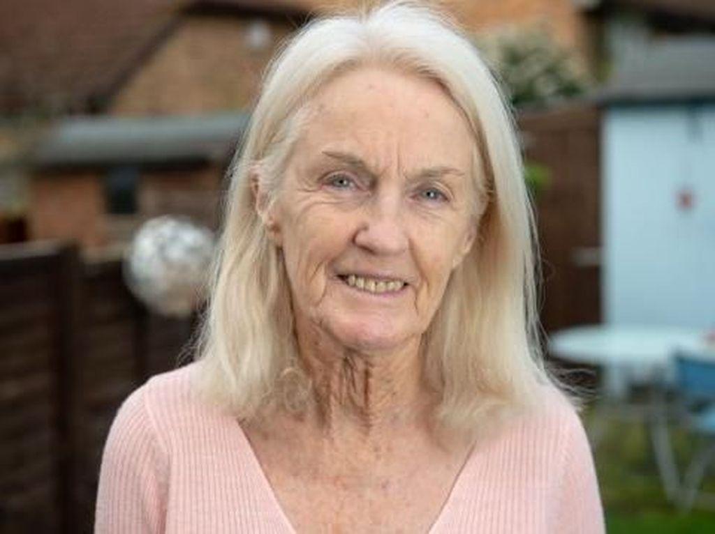 Kisah Nenek yang Berani Ambil Risiko Kematian, Operasi Face Lift di Usia 80