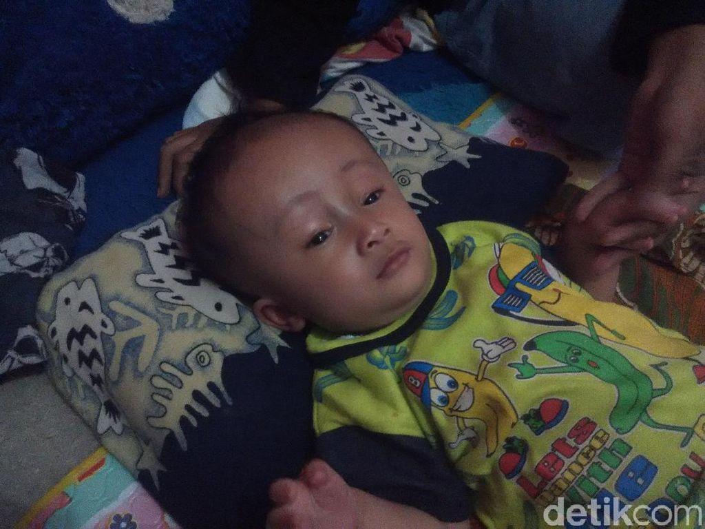 Bayi 8 Bulan di Bandung Barat Ini Kelainan Tempurung Kepalanya