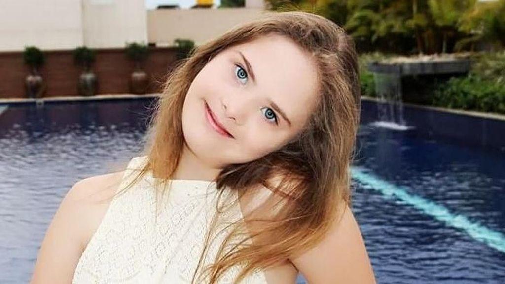 Potret Gadis Down Syndrome yang Dikontrak 5 Agensi Model Setelah Viral