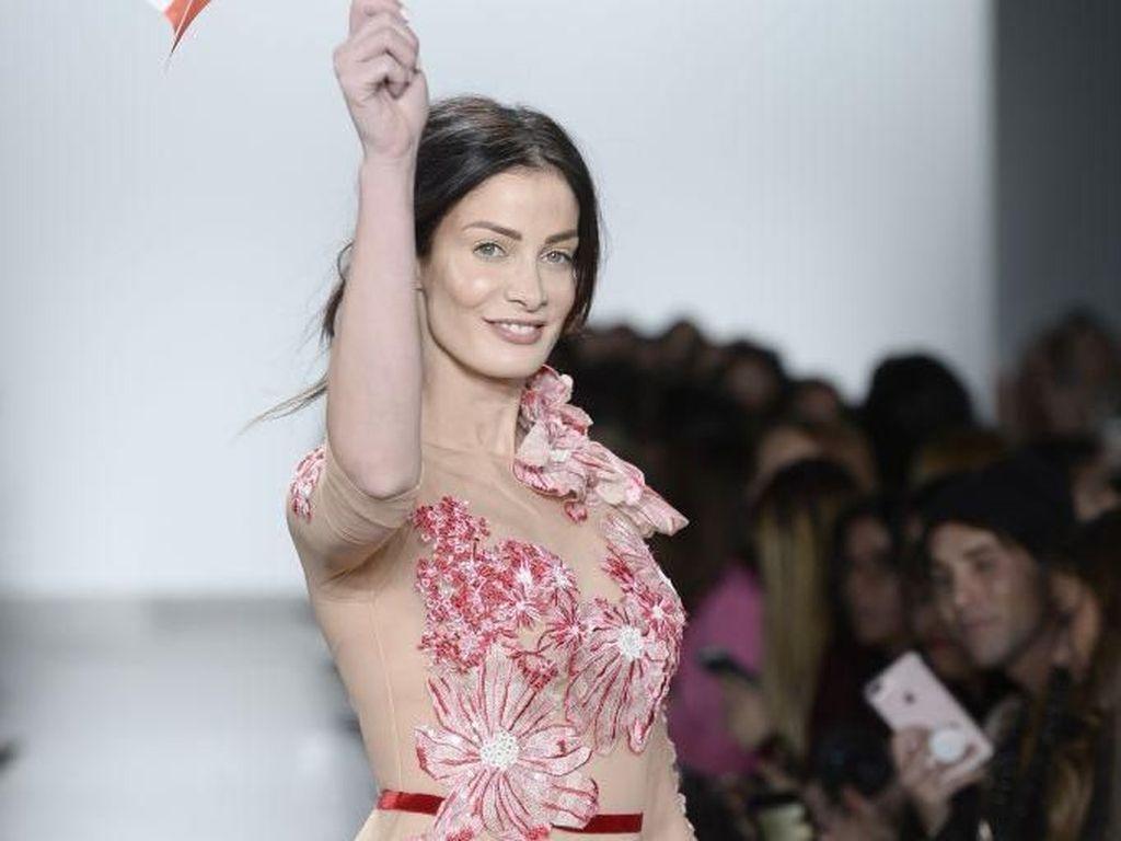 Mantan Miss Universe Dayanara Torres Didiagnosis Kanker Kulit