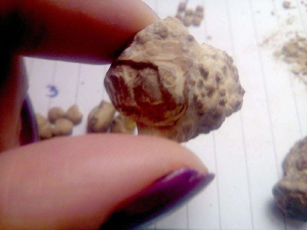 Keunikan Detail Batu Ginjal yang Pernah Dikeluarkan
