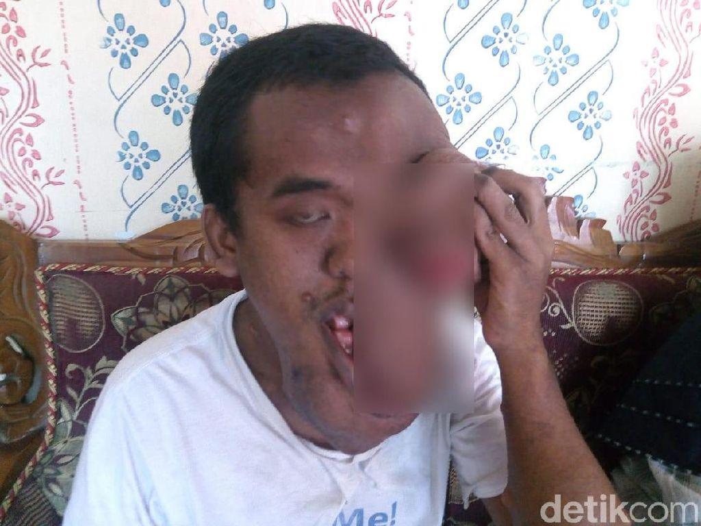 Sebagian Wajah Pemuda di Jombang Ini Digerogoti Tumor Langka