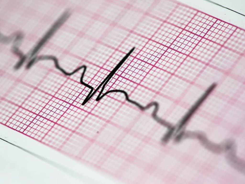 Catat, 6 Cara untuk Cegah Serangan Jantung Kedua