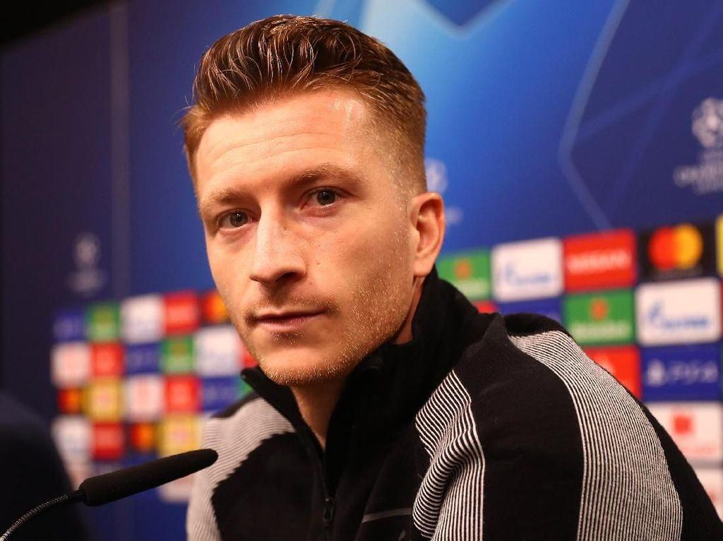 Dortmund Harus Yakin Bisa Mencapai Hal-hal yang Mustahil