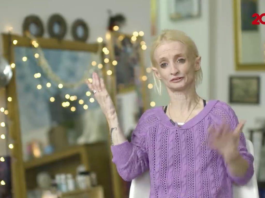 Idap Penyakit Langka, Wanita Ini Menua dengan Cepat