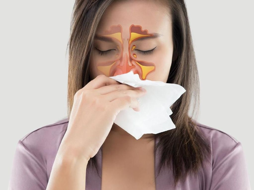 Gejala, Pencegahan, dan Cara Pengobatan Sinusitis