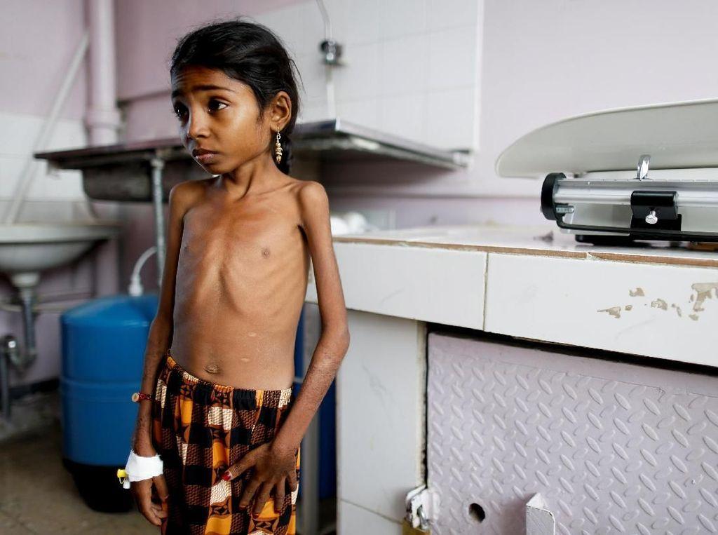 Potret Memilukan Kondisi Anak-anak Korban Perang di Yaman
