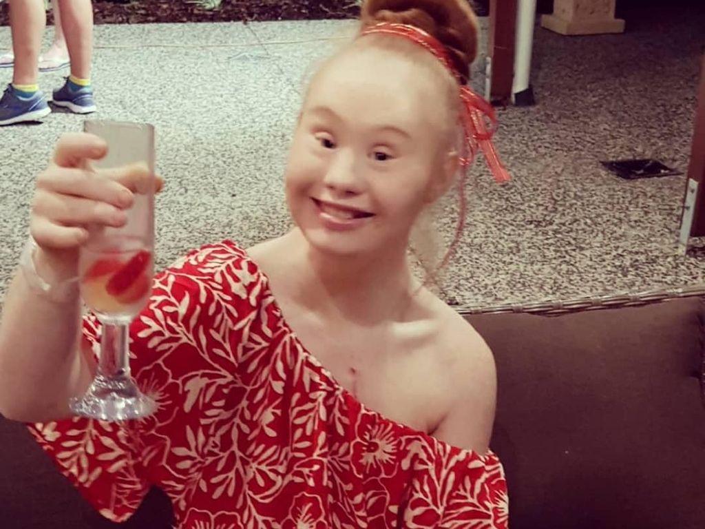 Cantiknya Madeline Stuart, Model Down Syndrome yang Suka Wisata Kuliner