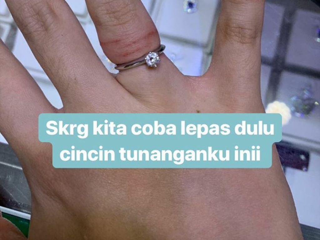 Jari Tasya Kamila Bengkak karena Cincin Nikah, Begini Cara Melepasnya