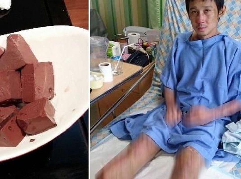 Terinfeksi Patogen Dalam Dadih Darah Babi, Pria Ini Diamputasi Kedua Kakinya
