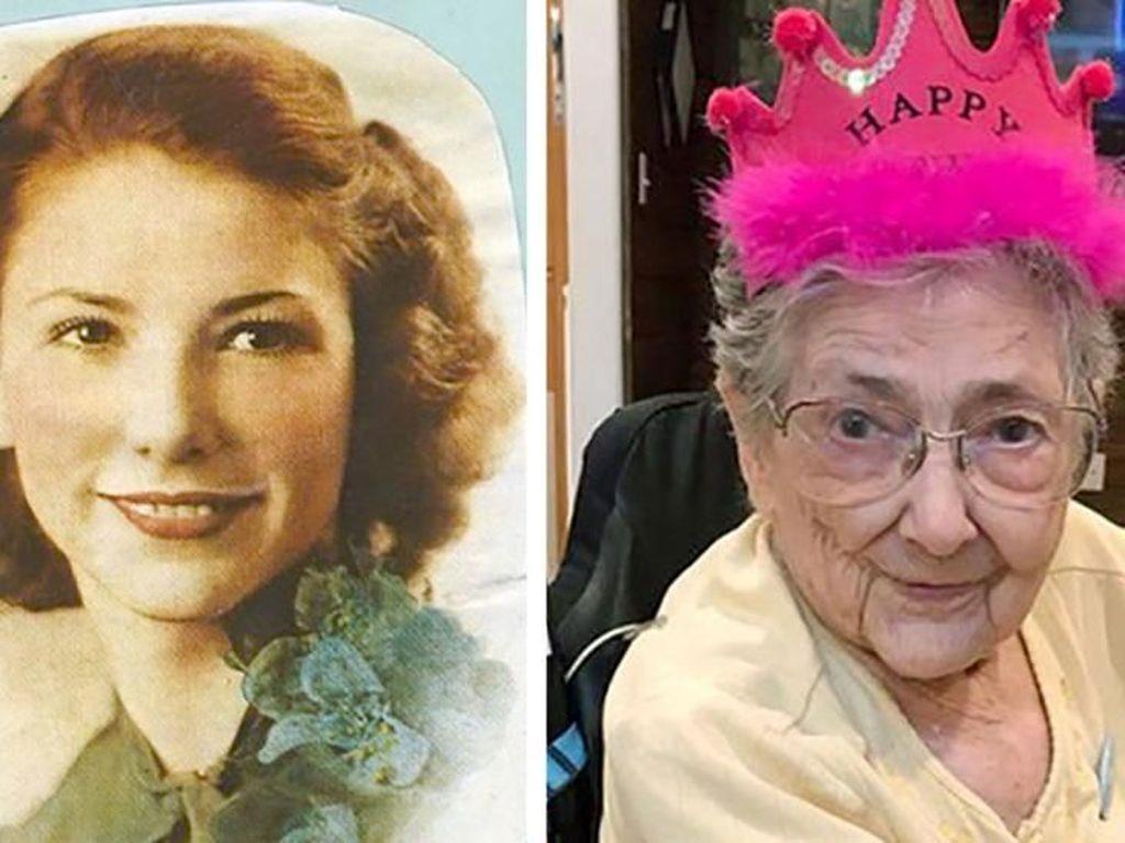 Kisah Rose yang Hidup Sampai 99 Tahun Tapi Organ Tubuhnya Salah Tempat