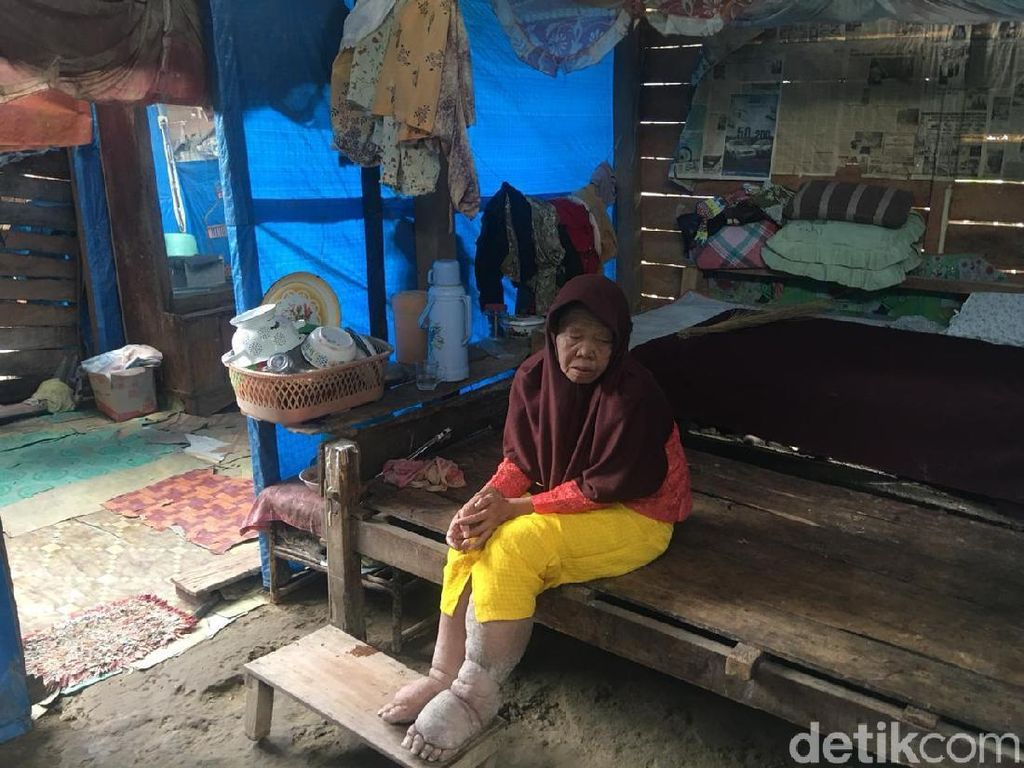Cerita Nenek Rohana Penderita Lepra Hidup Terkucilkan di Polewali
