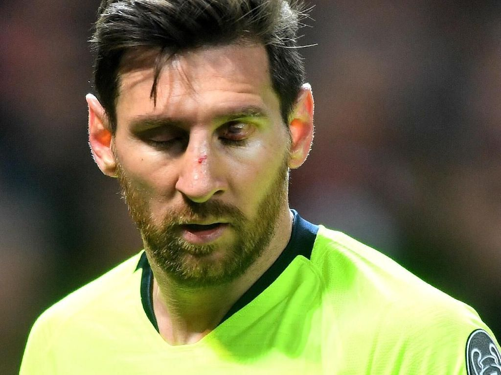 Wajah Messi Berdarah-darah di Laga MU vs Barcelona