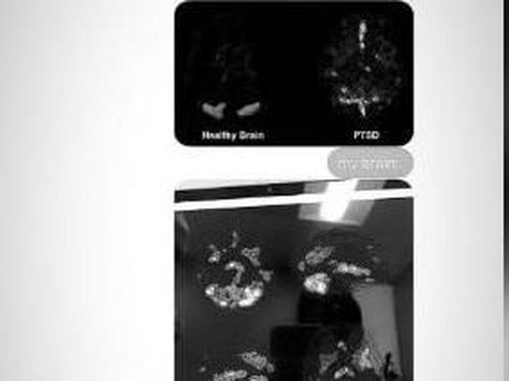 Ngeri, Ariana Grande Bagikan Scan Otaknya yang Idap Trauma