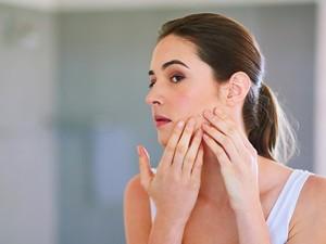 6 Kandungan Skincare yang Bisa Menghilangkan Jerawat