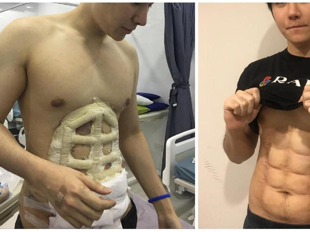 Viral Foto Pria Operasi Plastik untuk Dapat Perut Kekar Instan