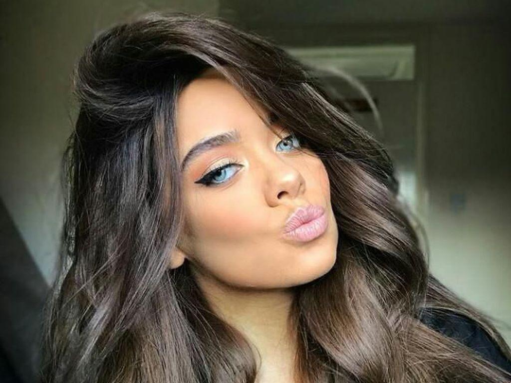 Gara-gara Filler, Selebgram Cantik Ini Nyaris Kehilangan Bibir