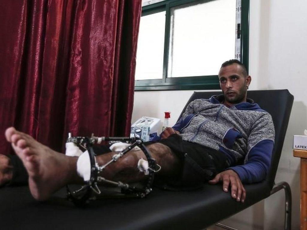 Hampir 2.000 Warga Palestina yang Tertembak Militer Israel Harus Diamputasi