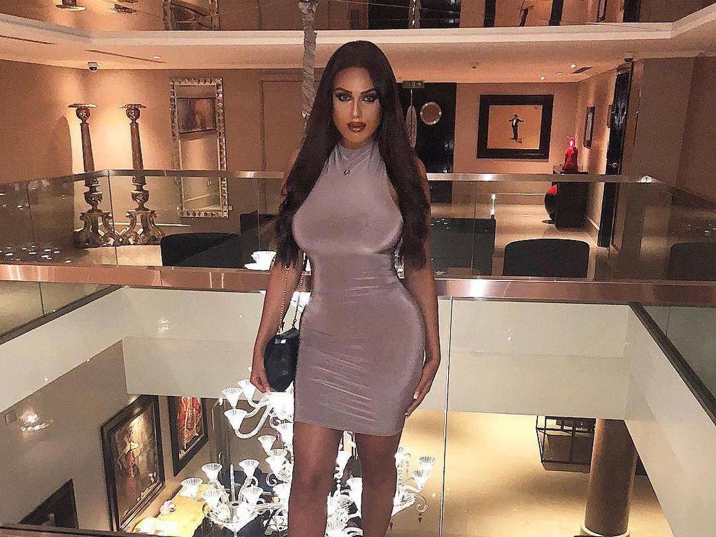 Bintang Reality TV Timur Tengah Dadanya Mati Rasa Gara-gara Implan Payudara