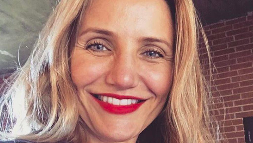 Penyesalan Selebriti Setelah Operasi Plastik dan Botox, Siapa Saja?
