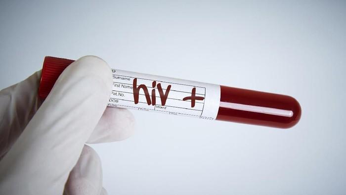 Ilustrasi tes HIV. Foto: iStock