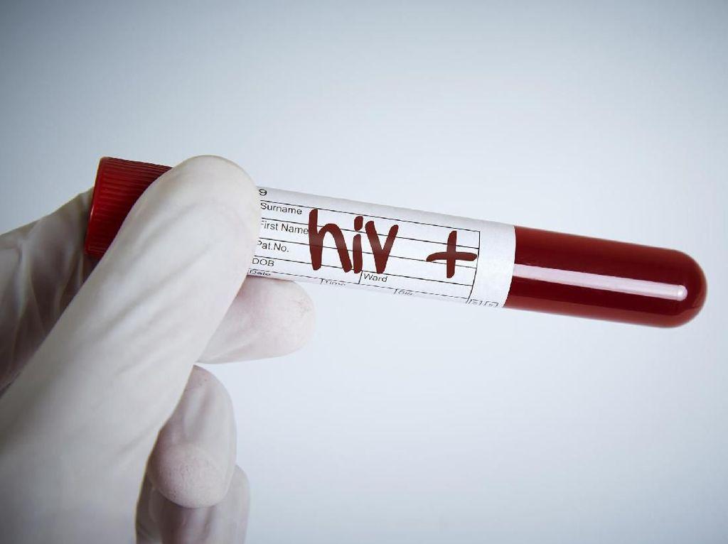 Heboh Sertifikat Pranikah, Skrining HIV Jadi Syarat Lulus?