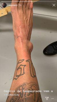 Neymar Pamer Cedera Kaki Sebesar Bakso