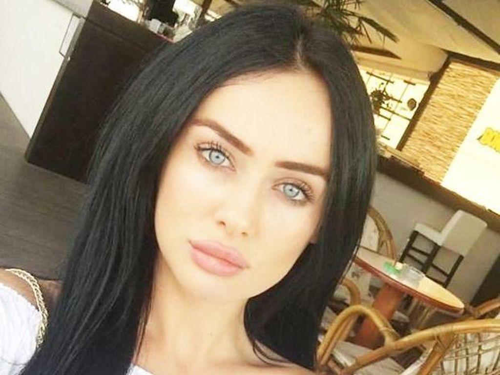 Miris, Model Cantik Dipukuli Pacarnya karena Dituduh Menggoda Pria Lain