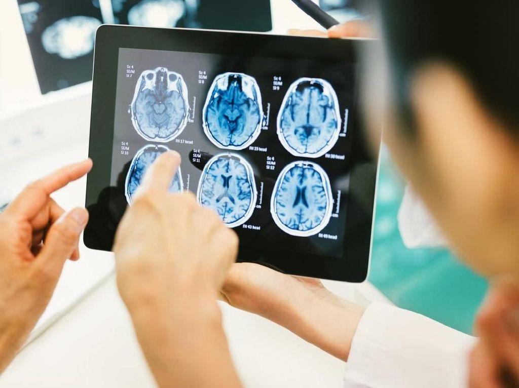 Dokter Salah Diagnosis Hingga 6 Tahun, Kanker Otak Disangka PMS