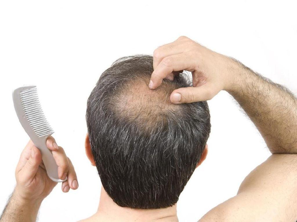 Agar Rambut Tak Cepat Botak Rajinlah Konsumsi 5 Buah Enak Ini