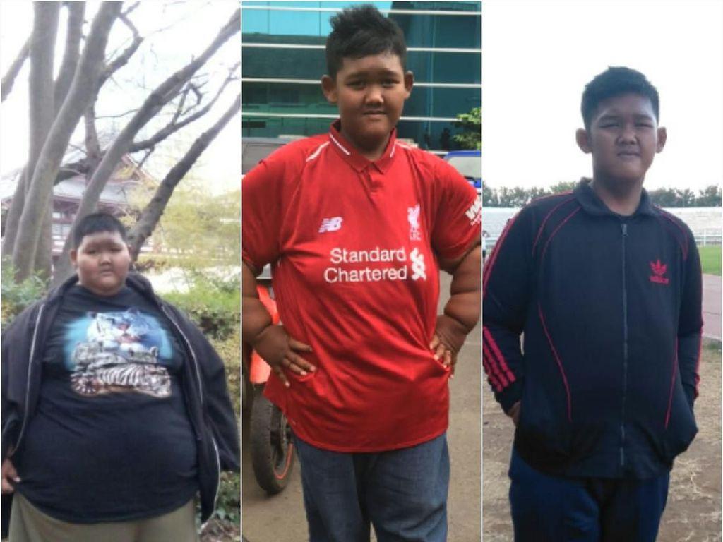 Perjalanan Aria, Si Bocah Tergemuk yang Sukses Pangkas Bobot 105 Kg