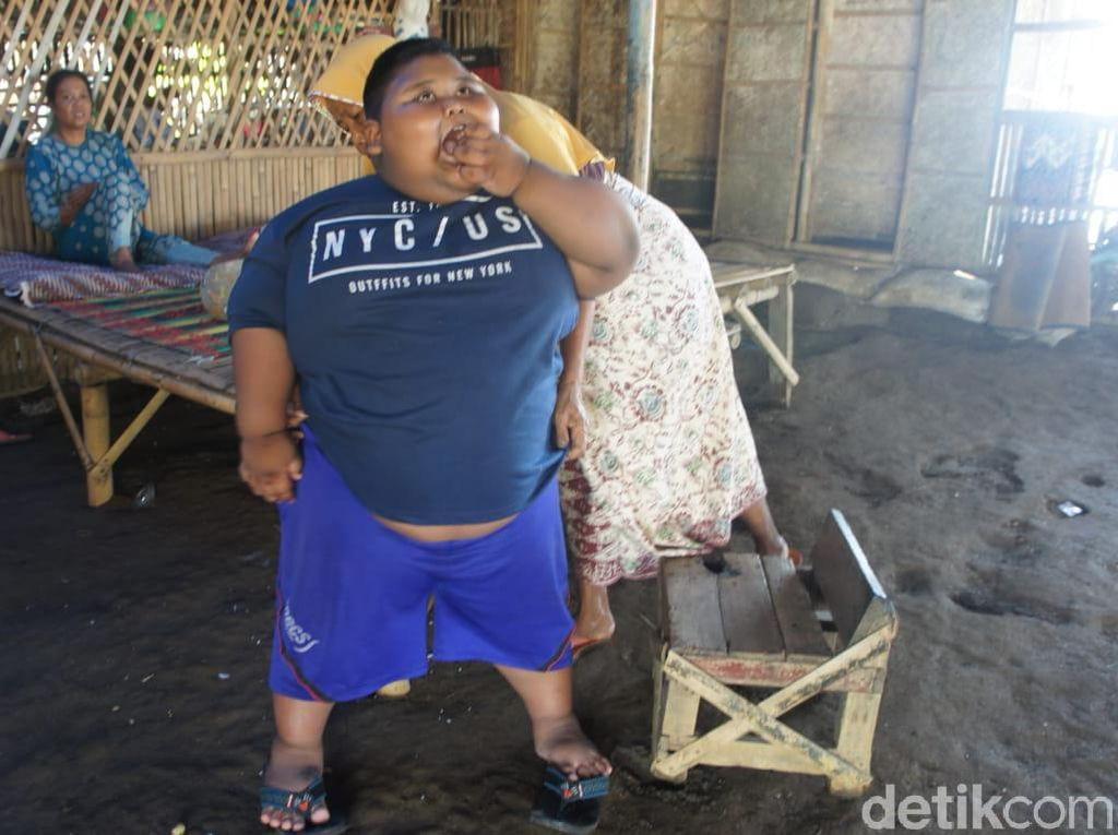 Saran Dokter Tangani Obesitas Ekstrem Bocah Berbobot 97 Kg di Karawang