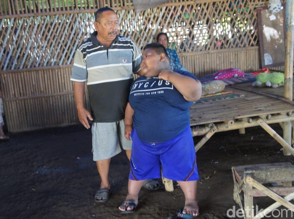 Dinkes Karawang Bantah Bocah 7 Tahun Berbobot 97 Kg Gara-gara Disunat