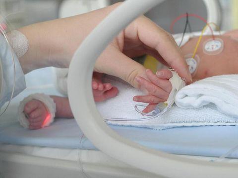 Ilustrasi bayi prematur