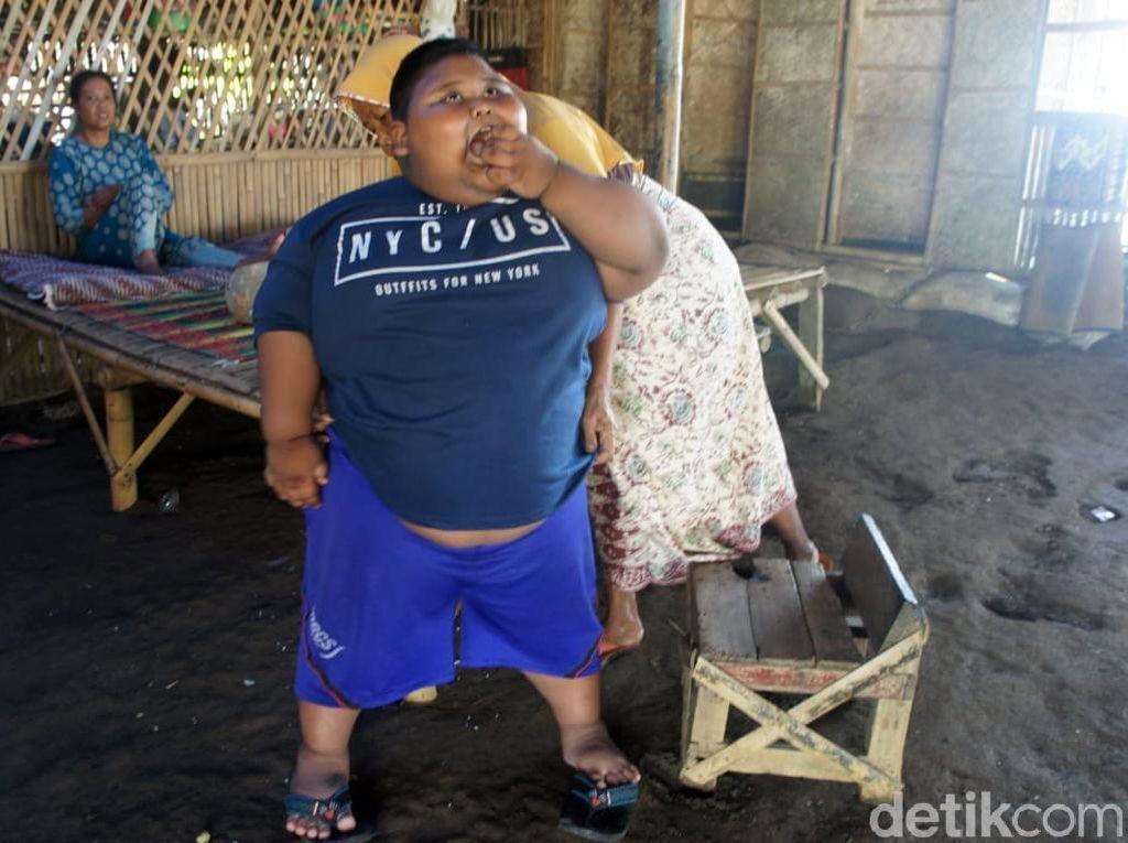 Satia Putra Meninggal karena Asma, Berikut Penyakit yang Bisa Muncul Akibat Obesitas