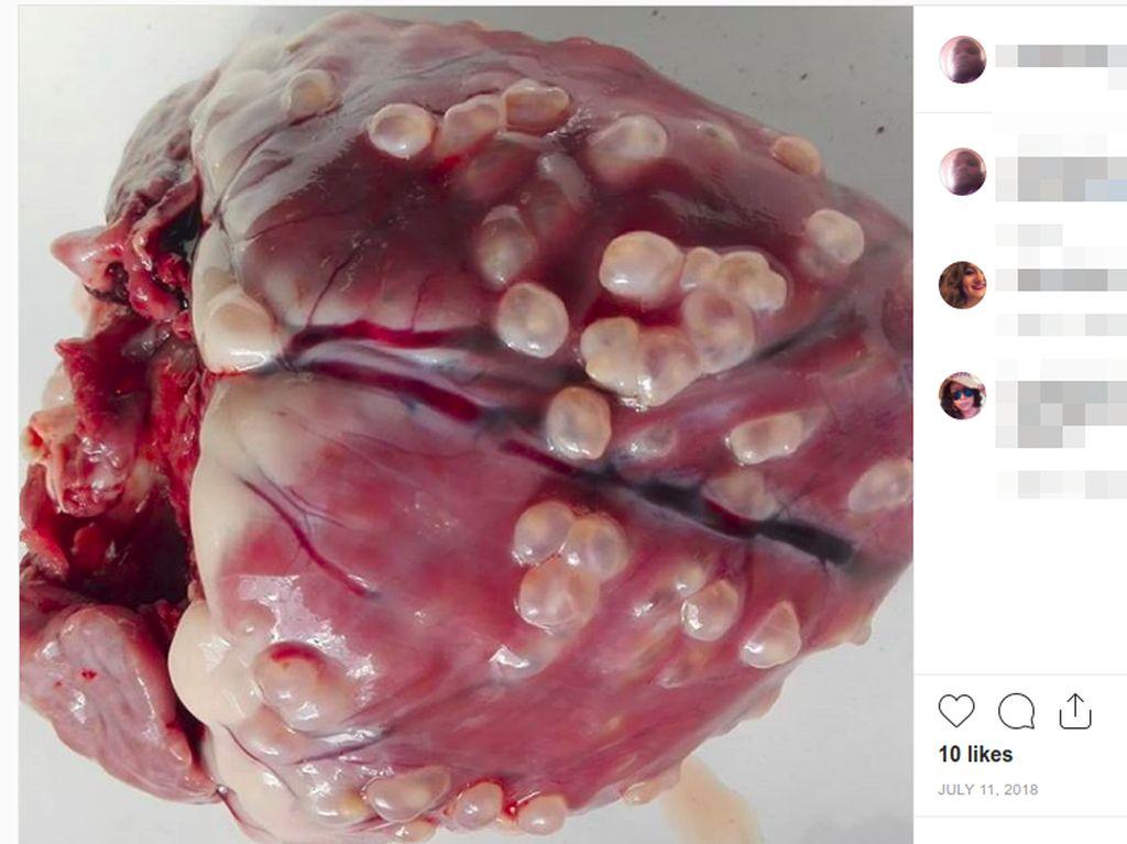Viral Foto Jantung Penuh Cacing Akibat Makan Daging Babi Belum Matang