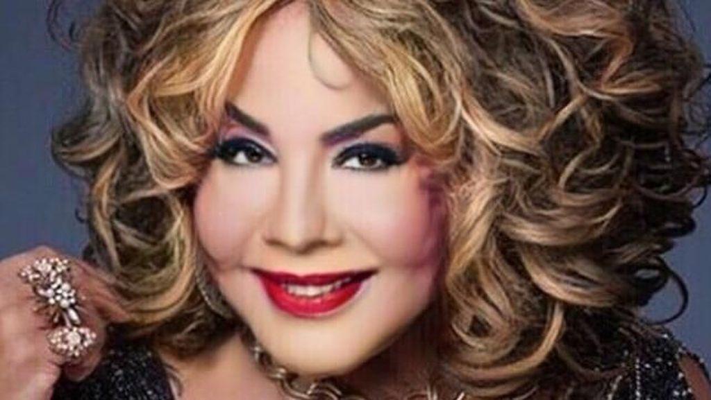 Foto Before - After Transgender Berwajah Rusak yang Kini Telah Divermak