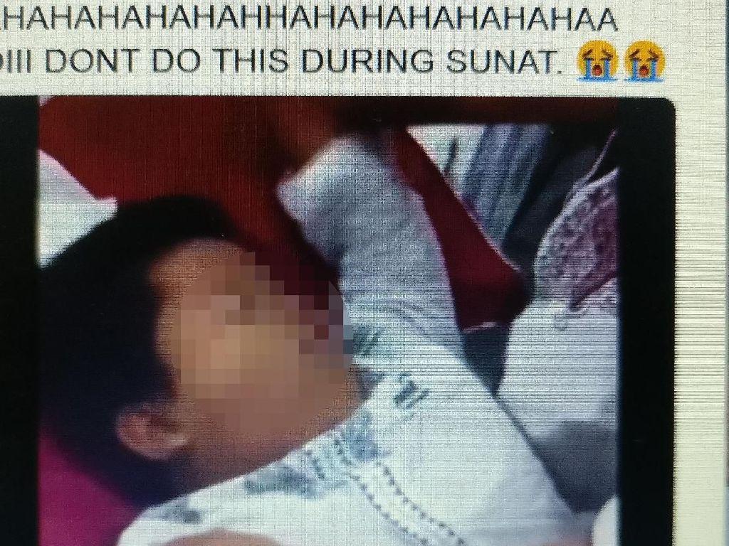 Viral Ekspresi Kocak Anak Pura-pura Pingsan Waktu Disunat
