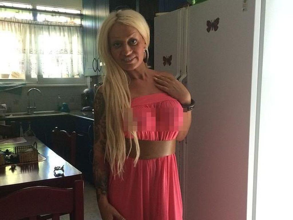 Wanita Habiskan Rp 1,7 M Untuk Oplas Mirip Barbie, Malah Diejek Monster
