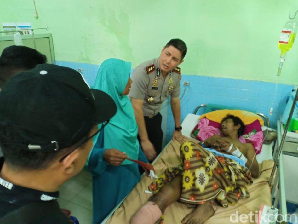 Kaki Korban Ledakan di Probolinggo Diamputasi