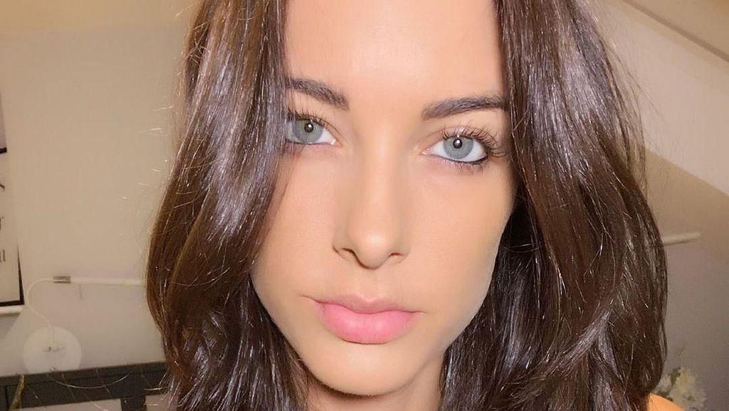 Sosok YouTuber Cantik yang Meninggal di Usia 35 Saat Naik Skuter
