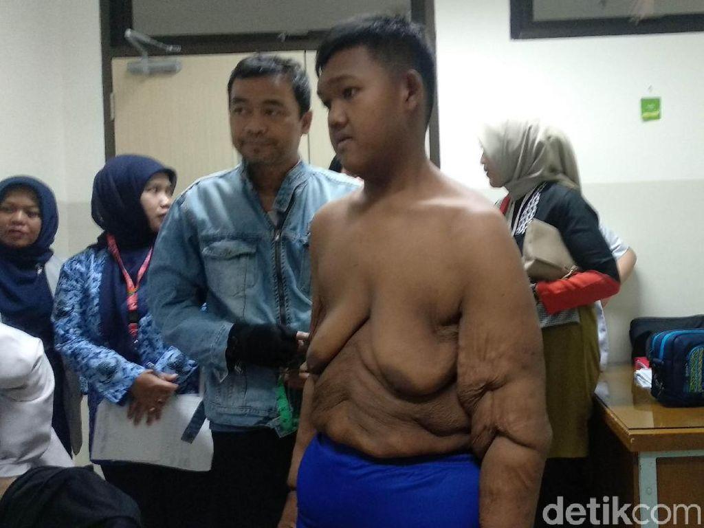 Aria Bocah Obesitas Karawang Jalani Bedah Plastik di RSHS