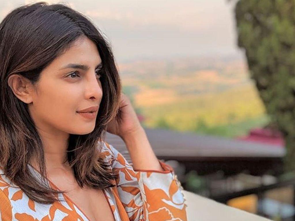 Priyanka Chopra Sebelum Oplas Hidung, Bikin Pangling
